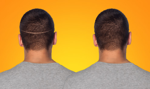 FUE Hair Restoration vs. the Strip Method
